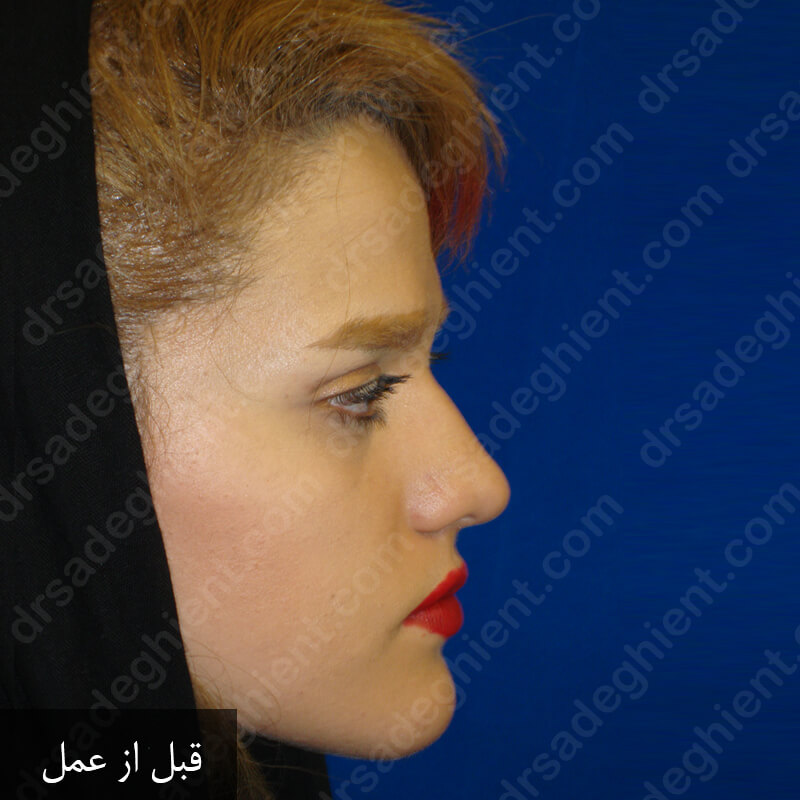 Before-نمونه کار